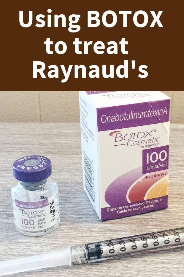 Botox as a Treatment for Raynaud's (How well does it work?)