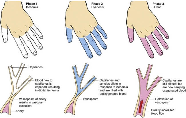 vasospasm - Botox as a Treatment for Raynaud's
