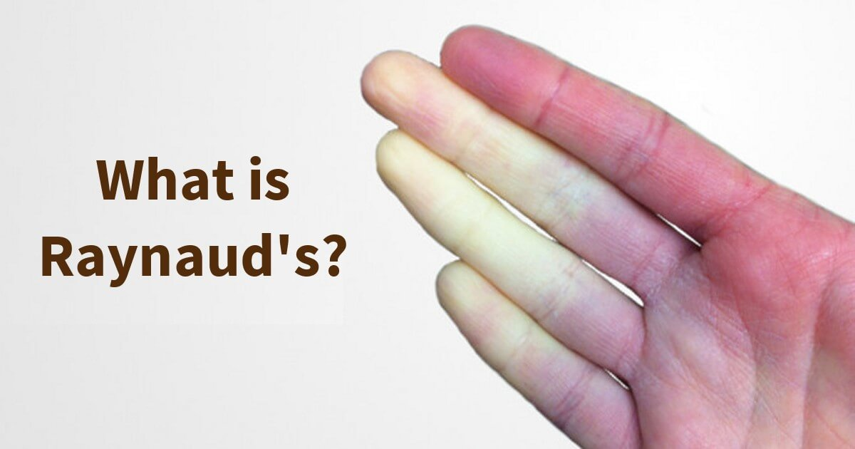 what is raynaud - Raynaud's Syndrome
